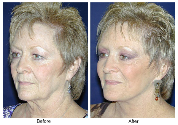 Before & After Facelift 1 – LQ