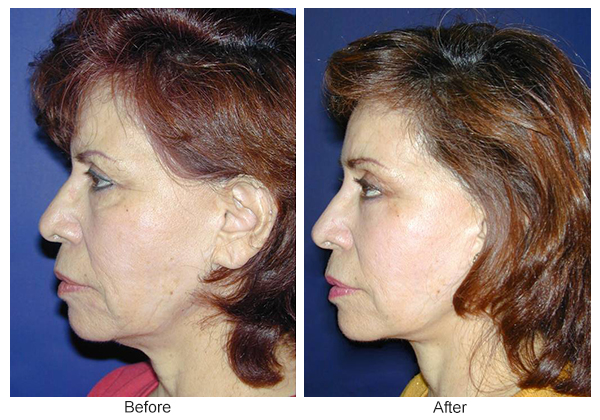 Before & After Facelift 3 – L