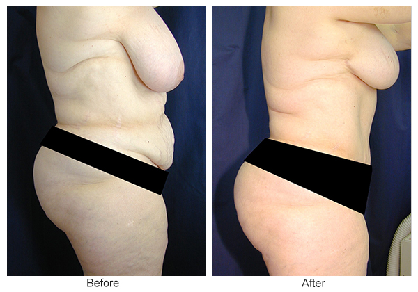 Before & After Tummy Tuck 10  – R