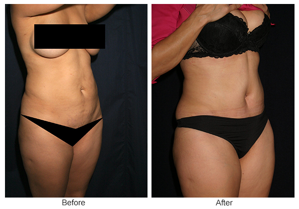 Before & After Tummy Tuck 4  – RQ