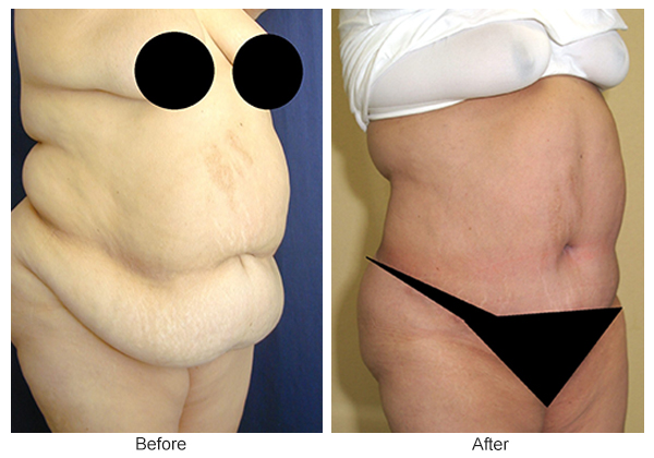 Before & After Tummy Tuck 5  – RQ
