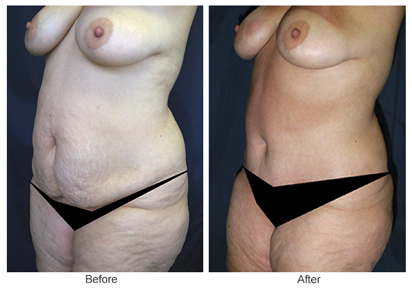 Before & After Tummy Tuck 8  – LQ