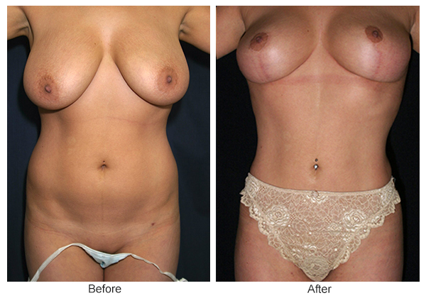 Before and After Liposuction 2 – F