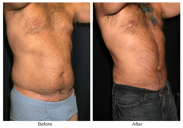 Before and After Liposuction 3 – RQ