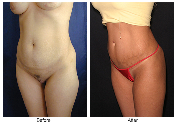 Before and After Liposuction 5 – LQ
