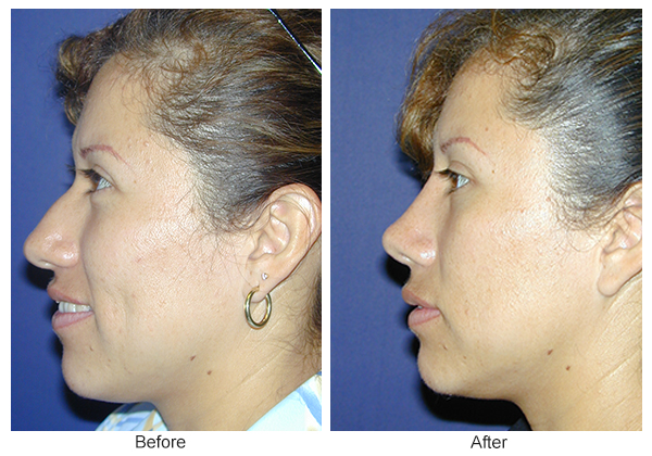 Before and After Rhinoplasty 10 – L