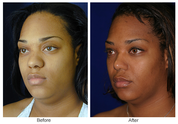 Before and After Rhinoplasty 15 – LQ