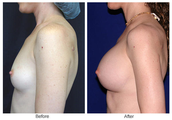Before & After Breast Augmentation 1 – Left