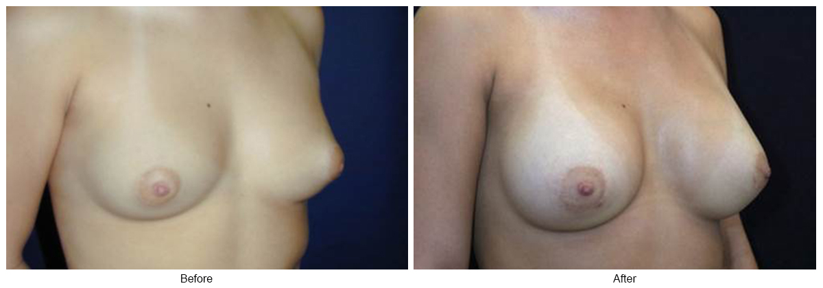 Before & After Breast Augmentation 11 – RQ