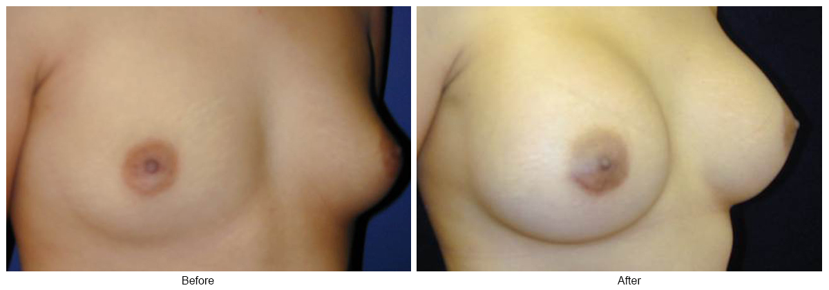 Before & After Breast Augmentation 13 – RQ