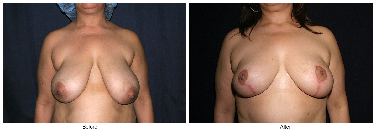 Before & After Breast Reduction 2 – Front