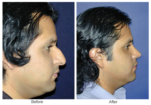 Before & After Rhinoplasty 11 – Right