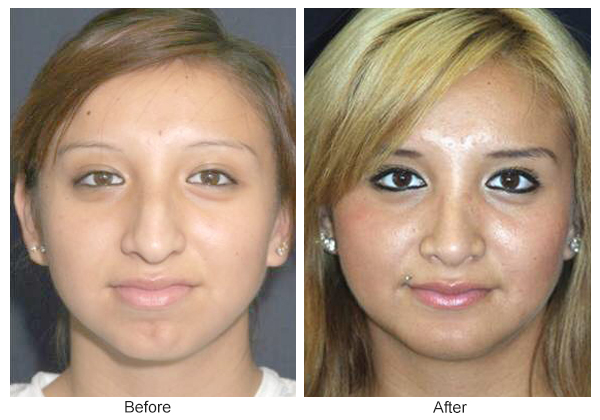 Before & After Rhinoplasty 3 – Front