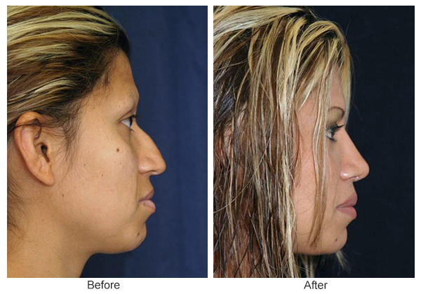 Before & After Rhinoplasty 4 – Right