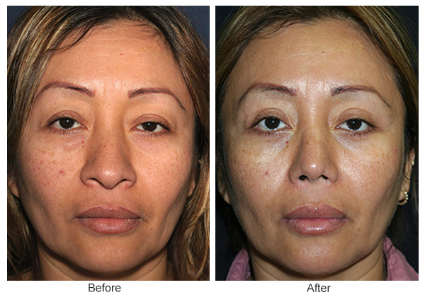 Before & After Rhinoplasty 6 – Front