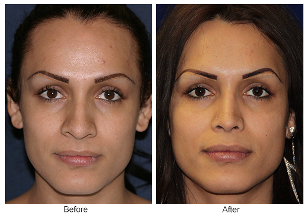 Before & After Rhinoplasty 8 – Front