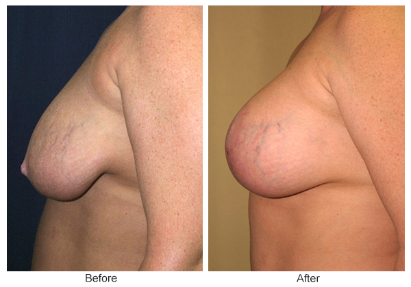 Before and After Breast Lift 1 – L