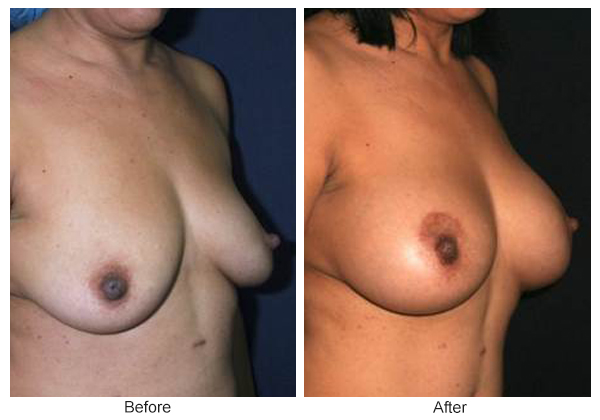 Before and After Breast Lift 4 – RQ
