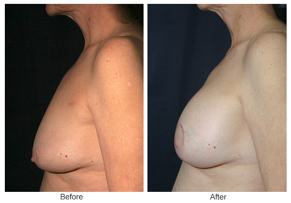 Before and After Breast Lift 5 – L