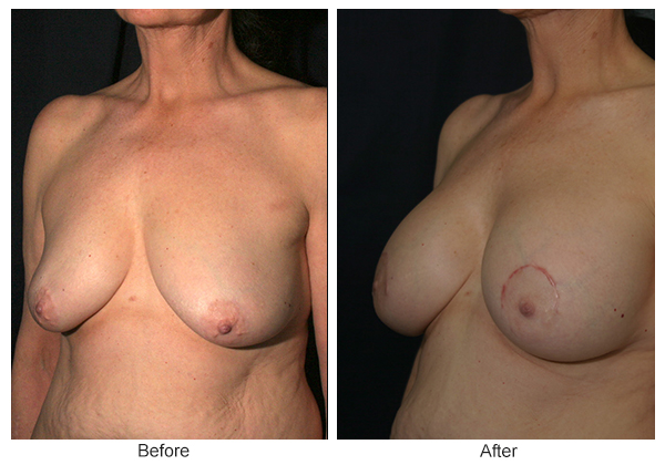 Before and After Breast Lift 5 – LQ