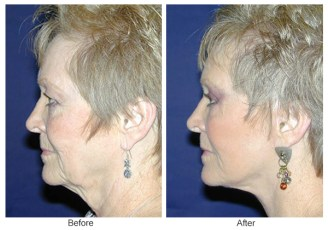 Orange County Cosmetic Surgery Clinique Before & After Facelift 1 - Left