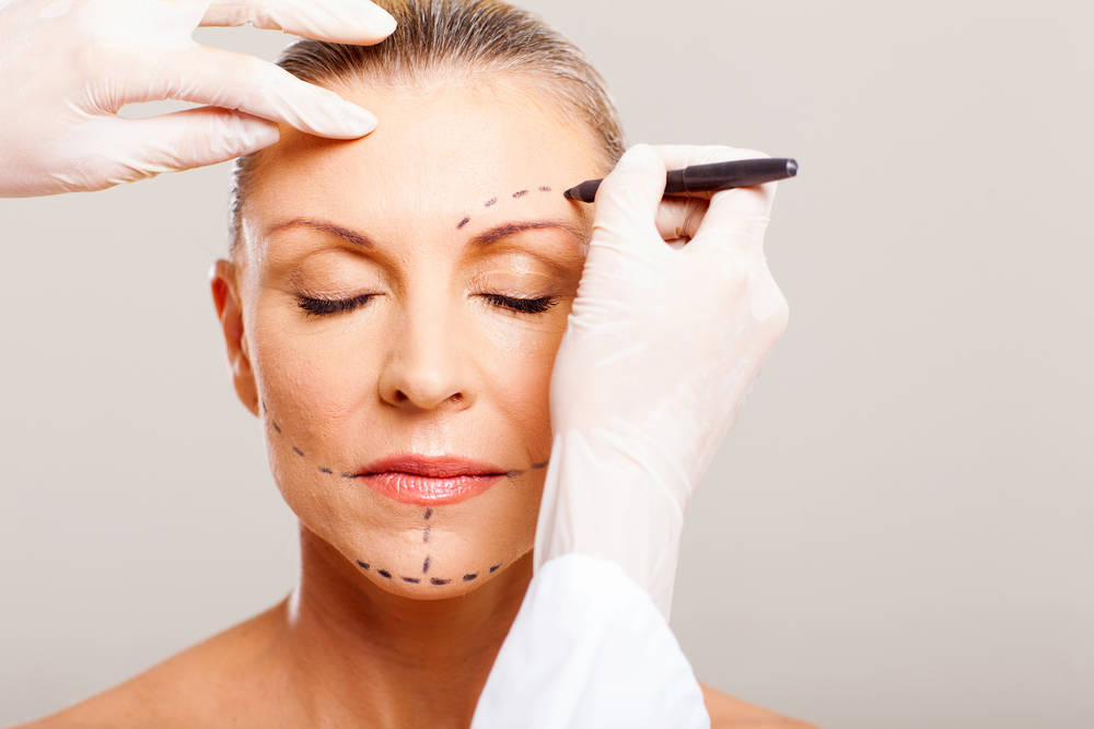 Dr. Tavoussi - California Facelift Expert | Cosmetic Surgery Procedure