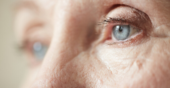 Treat Signs of Aging Through Blepharoplasty in Mount Vernon