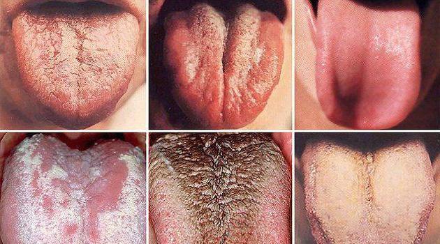 мышцы языка