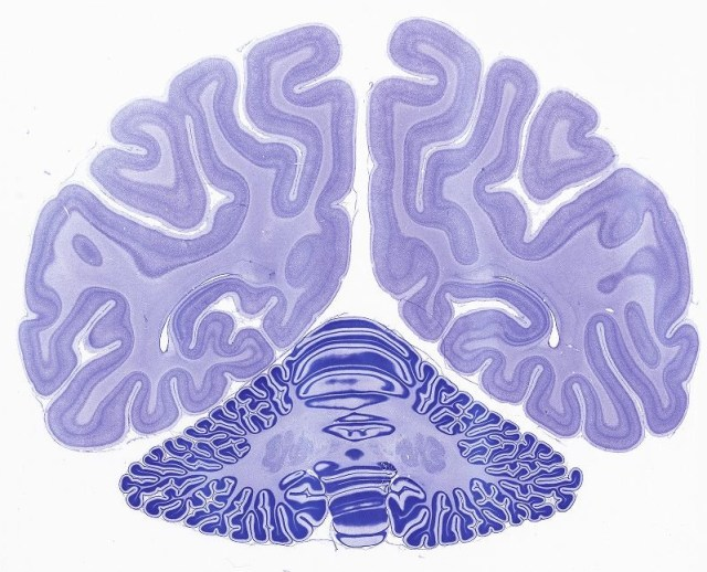Image: Monkey brain
