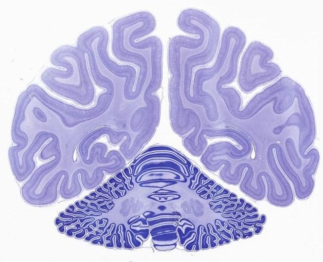 Image: Monkey brain
