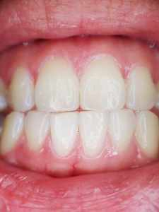 Image of tooth Gums