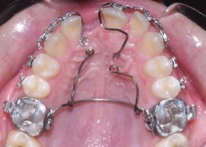 Image of a tooth retainer