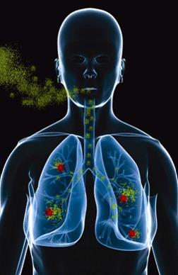 Radon health effects