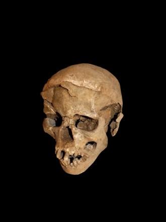 crâne fracassé sur le côté droit