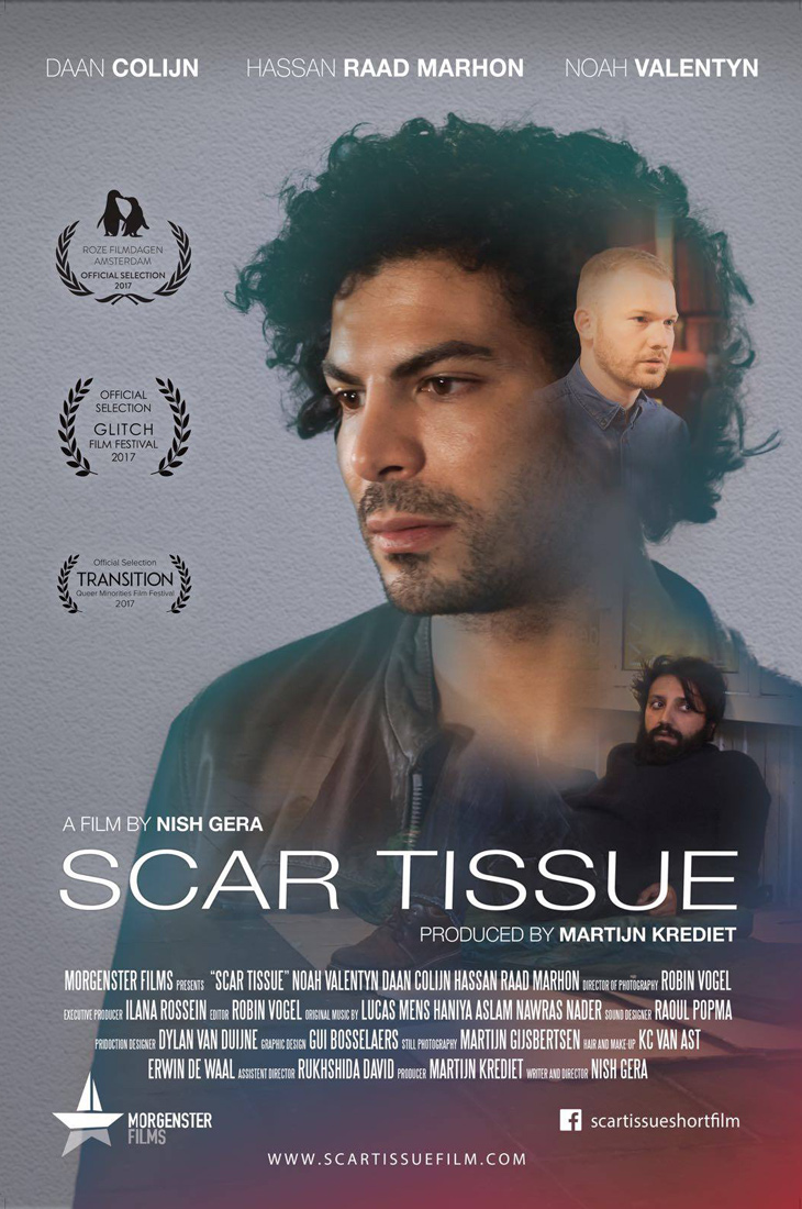 Film Poster 2 | Scar Tissue Dutch Gay Short Movie 2017 with Daan Colijn and Noah Valentyn | Morgenster Films