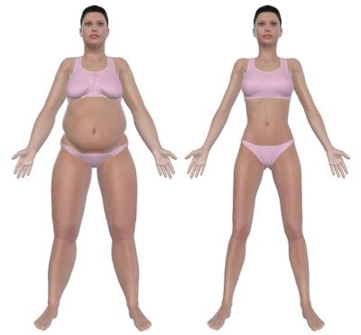 personality change after bariatric surgery