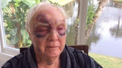 Photo of Douglas Brochet : un Snowbird lamentablement agressé à Lauderhill (Floride)