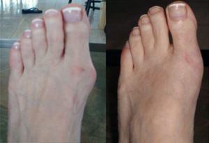 Photo envoyée par une cliente, avant et après l'intervention chirurgicale du pied par le Dr Galati, podologue à Fort Lauderdale en Floride