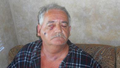 Photo de Blessé par balle en Floride, un Québécois reçoit une facture d'hôpital de 100 000$