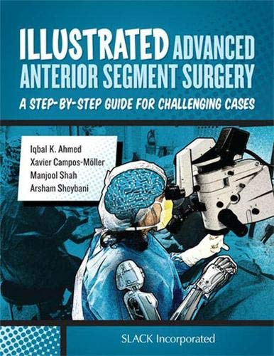 Illustrated Advanced Anterior Segment Surgery: A Step-by-Step Guide for Challenging Cases