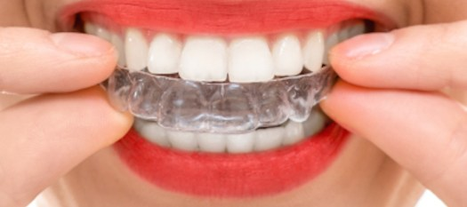 Wearing orthodontic silicone trainer