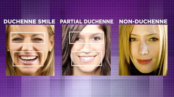 duchenne-smile_0