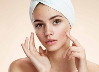 Ways to get rid of Acne