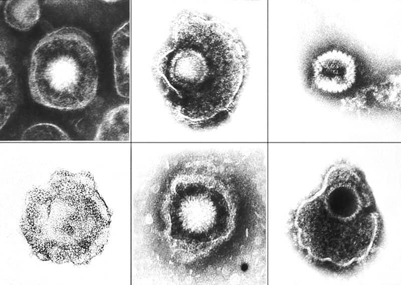 Wirusy z rodziny Herpesviridae