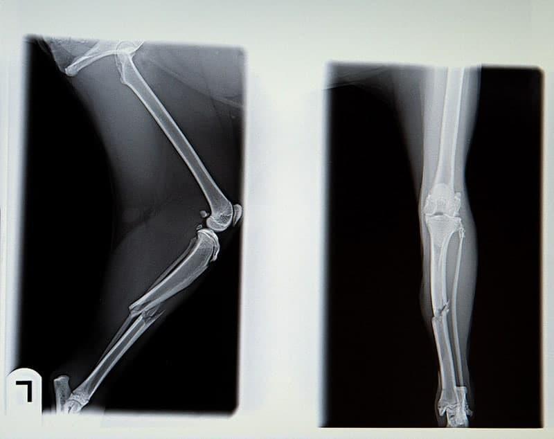 Badanie radiologiczne kości