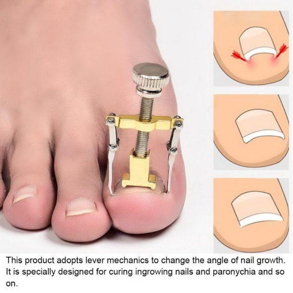 Ingrown Toe Nail Correction Tool Fixer Recover Toe Paronychia Nail Brace Tools Ingrown Toenails Pedicure Tool