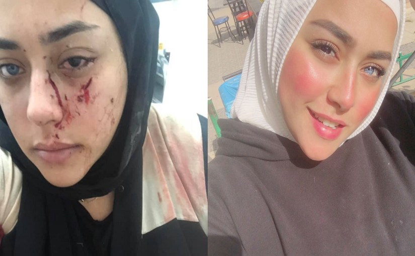 حادث مميت يشوه وجه حسناء بعد ساعات من نشر صورتها