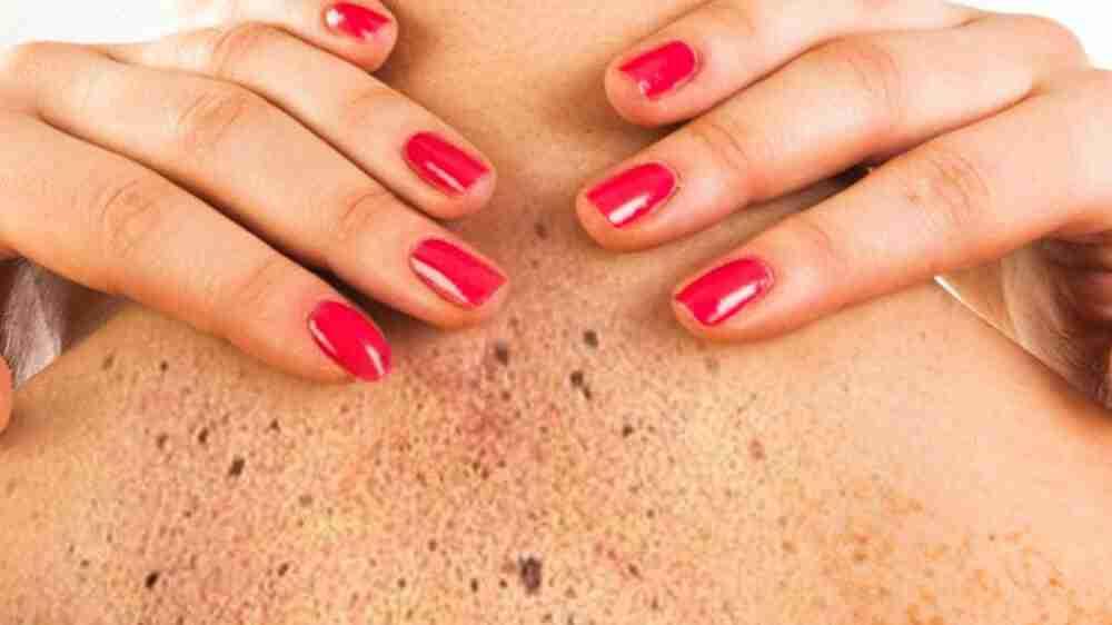 Plano de saúde deve custear medicamento para câncer de pele