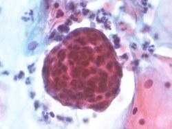 cáncer de útero