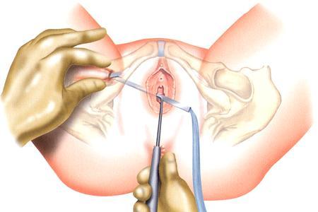 cirugia de vejiga caida con malla